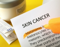 Researchers find how skin cancer cells avoid attack by the immune system